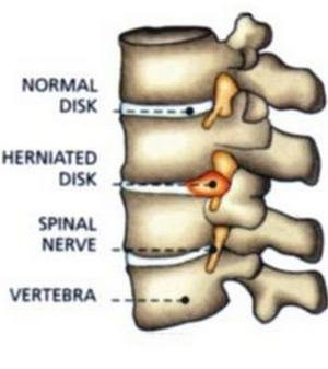 slipped disc and normal disc