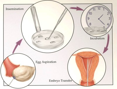 In Vitro Fertilization Image