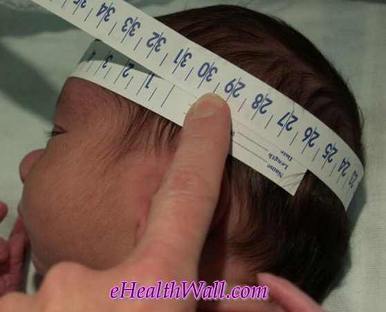 head circumferenec measurement for microcephaly diagnosis