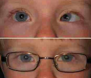 Optical correction for esotropia