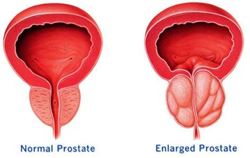 Swollen Prostate Image