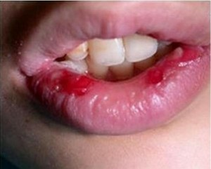 Bleeding Herpetic Gingivostomatitis images