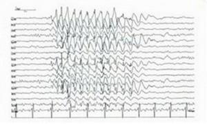 EEG Reading pics