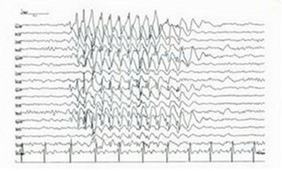 Juvenile Myoclonic Epilepsy - Treatment, Prognosis, Symptoms