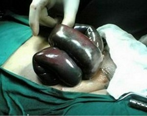 Strangulated Hernia pics