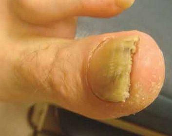 Onychomycosis pics