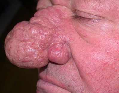rhinophyma photo