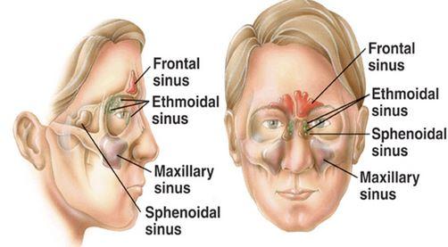 sinus types