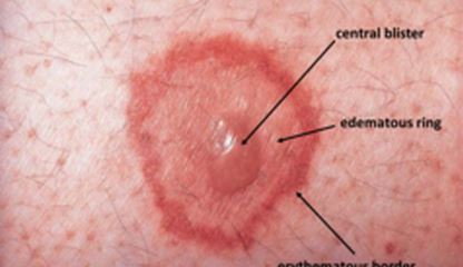 erythema multiforme pic