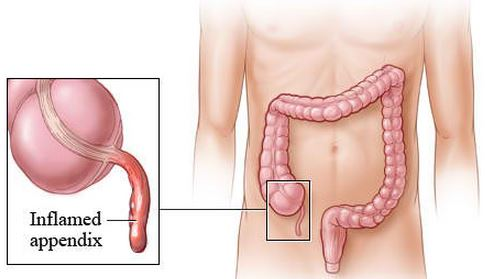 inflamed appendix