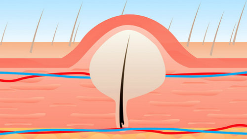 An illustration of ingrown hair.picture